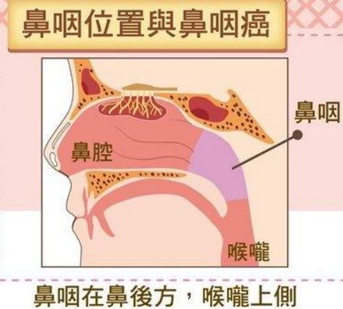 鼻咽癌早期症状表现,自查方法,为什么叫幸福癌?