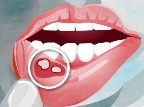 口腔溃疡怎么治才好,1分钟止痛和立马见效的方法