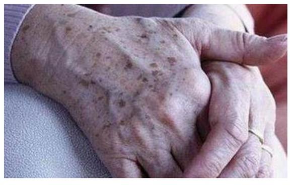 老年斑是怎么形成的,怎样能预防?激光祛斑的危害与效果!