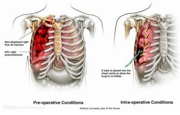 肋骨骨折症状,怎么自己鉴别,右边胸下隐隐作痛怎么回事?