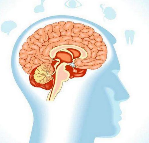 脑血管痉挛的症状,严重吗,吃什么药?