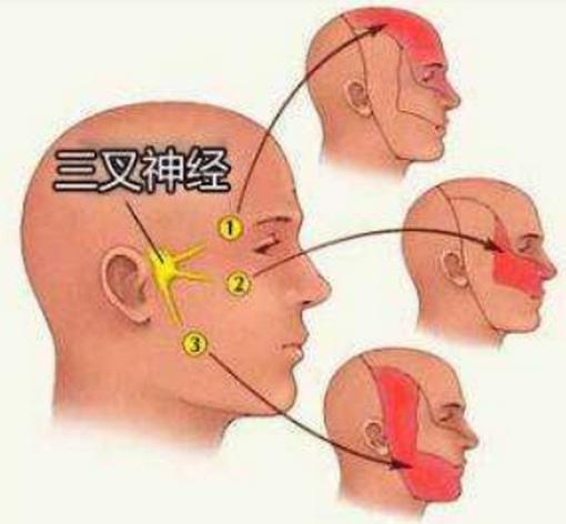 三叉神经痛的原因 ,它痛在什么位置,有没有止痛小方法?