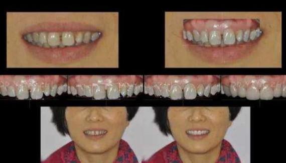 四环素牙如何美白,能根治吗,怎么判断是否得此病?