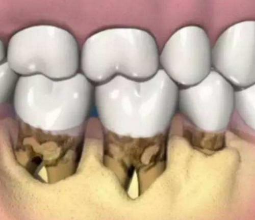 重度牙周炎症状,如何判断,牙髓炎千万不要根管吗?