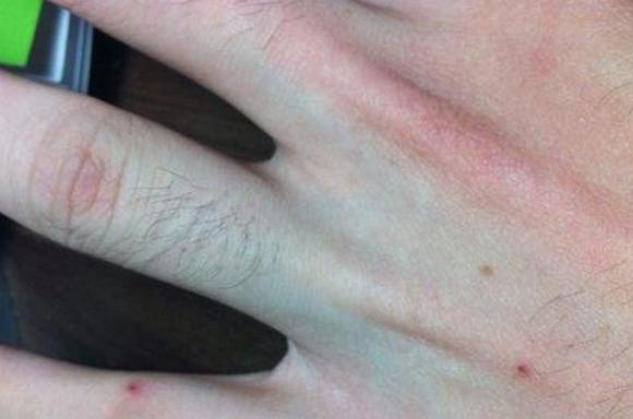手臂上有小红点,像出血点,不痛不痒按压褪色怎么办?