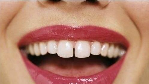 牙齿稀疏牙缝变大是什么原因,有没有让牙缝缩小的妙招?