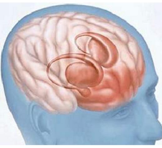 脑外伤最佳恢复期,后遗症治疗,颅脑损伤5个并发症