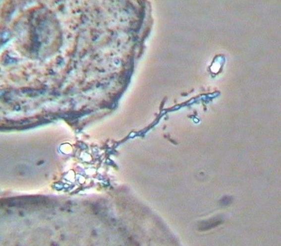 线索细胞阳性能自愈吗,对孕妇影响大吗?加纳德菌阳性怎么办?