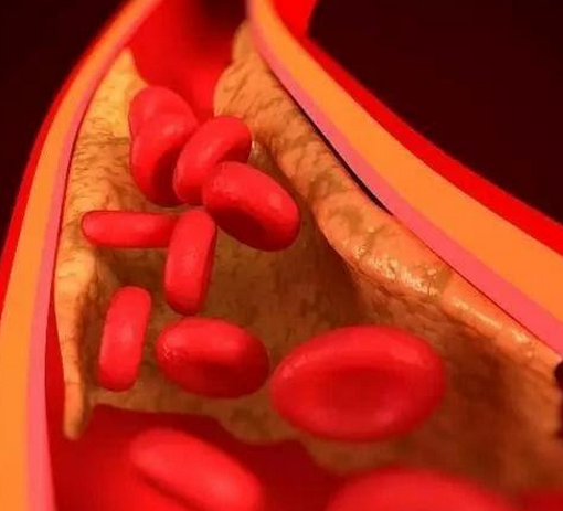 噬血细胞综合征能治好吗,预后如何?血小板减少症原因!