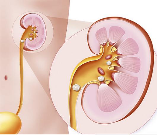 肾结石最好的治疗方法,一般多久能排出,不能吃什么?