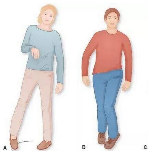 痉挛性截瘫的预防,怎样锻炼,遗传性会加重吗?