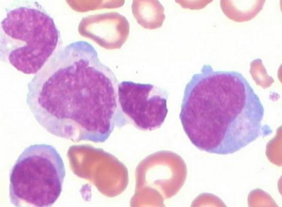 单核细胞比率偏高说明什么,会发烧几天,其他正常严重吗?