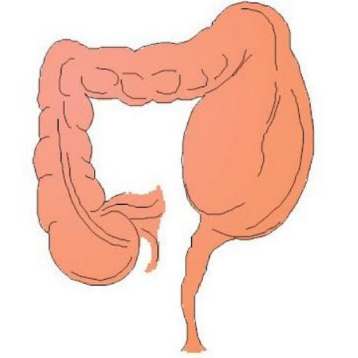 先天性巨结肠怎么治,怎么排除此病?肠梗阻的症状表现