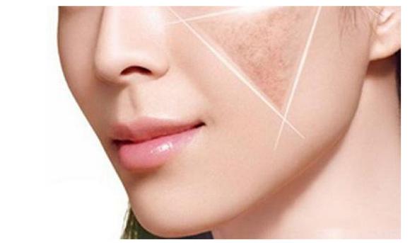 激光祛斑的危害大吗,有副作用吗?除斑后会反弹吗?
