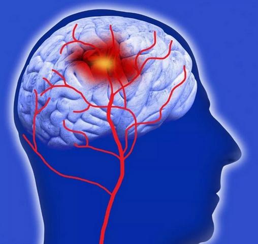 脑血管痉挛要紧吗,可以自愈吗?最佳治疗方法分析