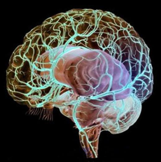 脑血管畸形 严重吗,造影后死亡率高吗,能活多少岁?