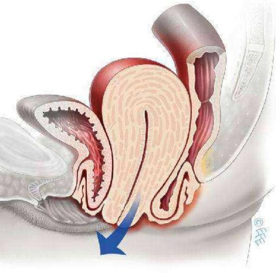 直肠脱垂怎么治疗,手术要几天,能自愈吗?