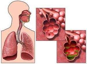 阻塞性肺气肿会传染吗?最常见的病因有什么?能活多久?