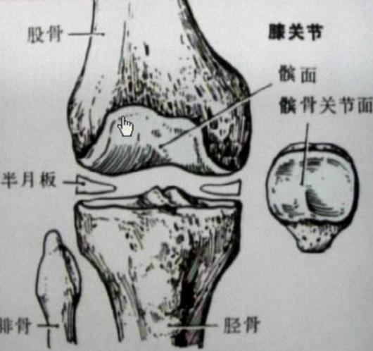 膝关节半月板损伤原因和简易动作判别,怎么治好?