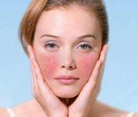 脸部皮肤过敏怎么办,土豆片快速脱敏的小窍门是什么?