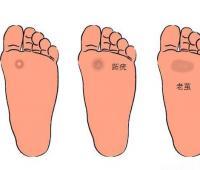 脚上长鸡眼怎么办去除,初期怎么治疗最快最有效