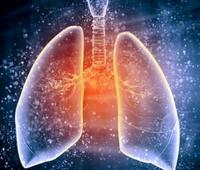肺纤维化是怎么回事?早期症状有哪些?能治好吗?