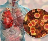 支原体肺炎怎么引起的?传染吗?多久能好?