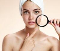 黄褐斑的特点是什么,怎么去掉脸上的黄褐斑?