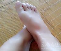艾叶生姜泡脚的好处 长期坚持竟能治这些疾病(2)