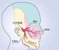 急性三叉神经炎多久能好?三叉神经受损会引起脸麻吗?