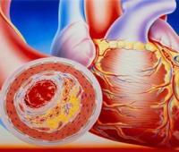 右下肢动脉硬化闭塞症的一般寿命有多少,打通下肢血管闭塞的中药方子有哪些