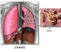 什么是急性呼吸窘迫综合征?诊断标准有哪些?