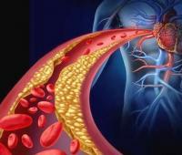 甘油三酯高的危害有哪些?原因是什么?这些治疗方法你需要知道。