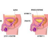 前列腺位置在哪里?炎症的症状及表现有这些。