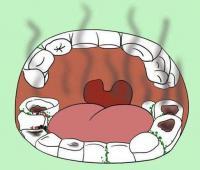 口气重怎么办?原因有哪些?有哪些治疗和缓解的小窍门?