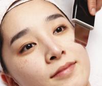 光子嫩肤祛斑效果如何 专家解答
