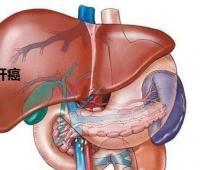 和肝癌病人一起吃饭会传染吗