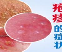 常见的皮肤病有哪些?各种皮肤病大全