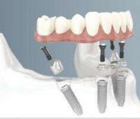 种植牙要多久?牙医不建议做种植牙,种植牙之后可以怀孕吗?