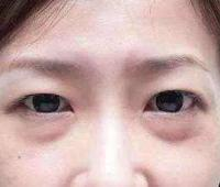 对抗皮肤衰老,眼袋是怎么形成的?