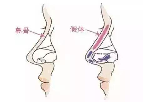 假体隆鼻需要多长时间才能恢复