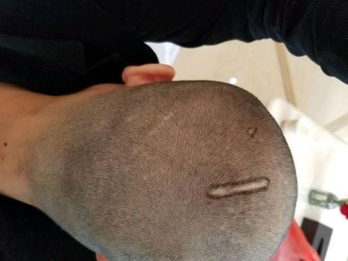 我必须剃光头做头发移植吗