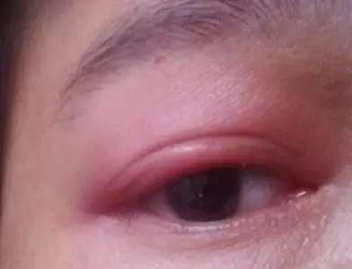 眼睛里的红色条纹是什么