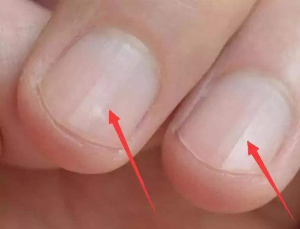 儿童手指甲不齐的原因是什么